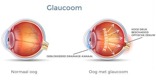 glaucoom behandelen