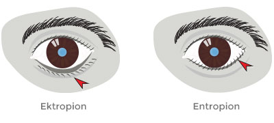 Ectropion vs Entropion
