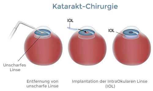 Katarakt Chirurgie