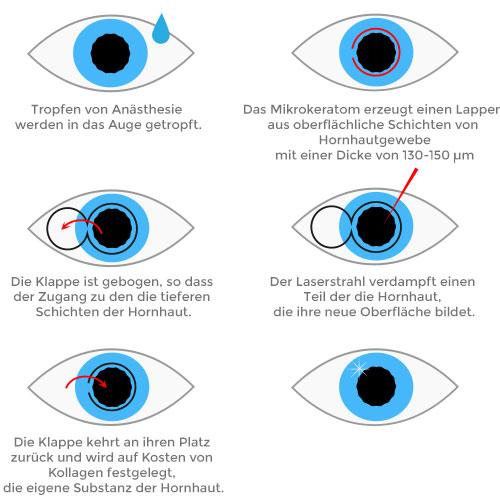 Laserbehandlungs Augen