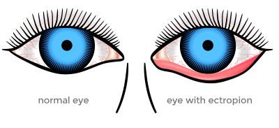 ectropion eye lids