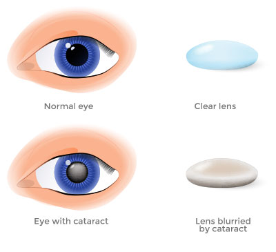 implant lens cataract