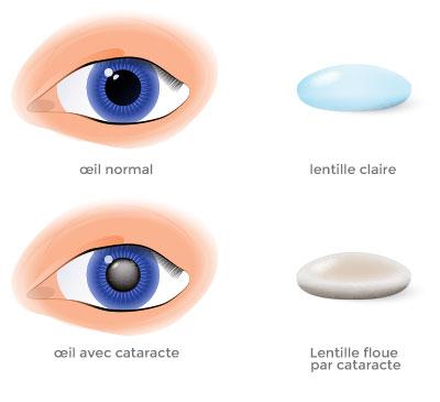implantation lentille cataracte